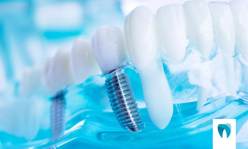 http://ortofacil.com.br/wp-content/uploads/2021/05/Implantodontia.jpg