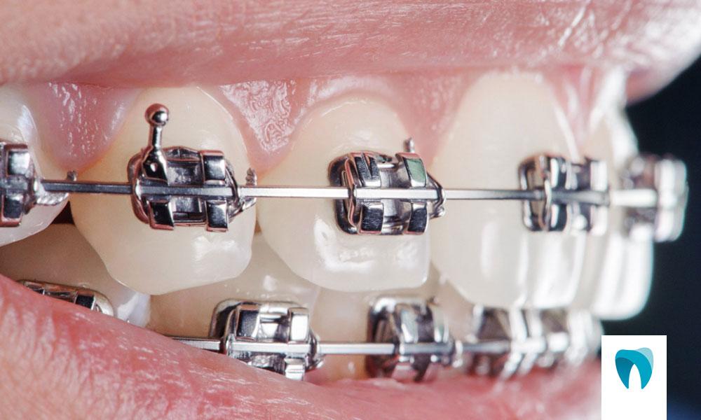 http://ortofacil.com.br/wp-content/uploads/2021/05/Ortodontia.jpg